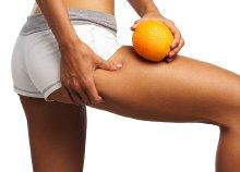 Cellulit stop: 10 kezelésből álló narancsbőr elleni program, orvosi tisztaságú illóolajokkal