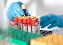 Professzionális szűrőcsomag teljes vérképpel, kiértékeléssel, életmódtanácsokkal a Budai Magánorvosi Centrumban