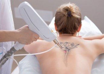 Tetoválás-eltávolítás YAG lézerrel