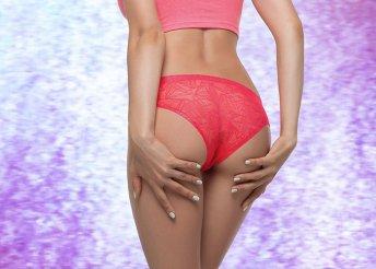 3 alkalmas SHR teljes intim- és fenékszőrtelenítés hölgyeknek, 1 alkalom 40 perces zsírfagyasztással