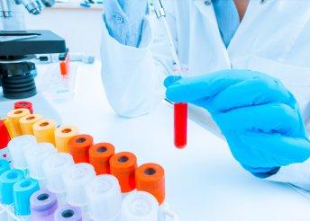 Laboratóriumi vizsgálat vérnyomásméréssel a Budai Magánorvosi Centrumban