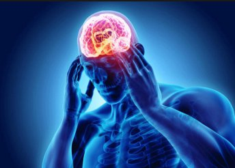 Koponya MR vizsgálati csomag a fejfájás okainak kiderítésére a Radivert MR Diagnosztika Központban