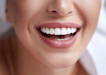 Ultrahangos fogkő-eltávolítás polírozással és állapotfelméréssel a Pearl Dent Fogászaton