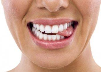 Lézeres fogfehérítés a több árnyalattal fehérebb fogakért a Mosolygyár Fogászattól